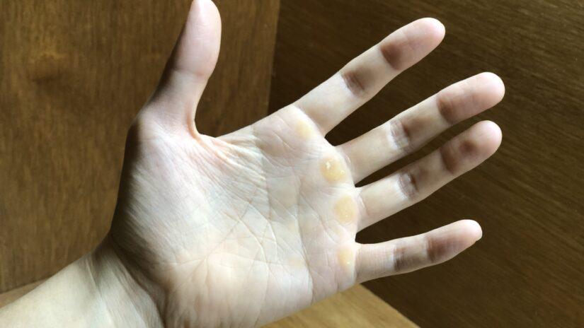 手に豆ができるのを予防したいなら手袋必着